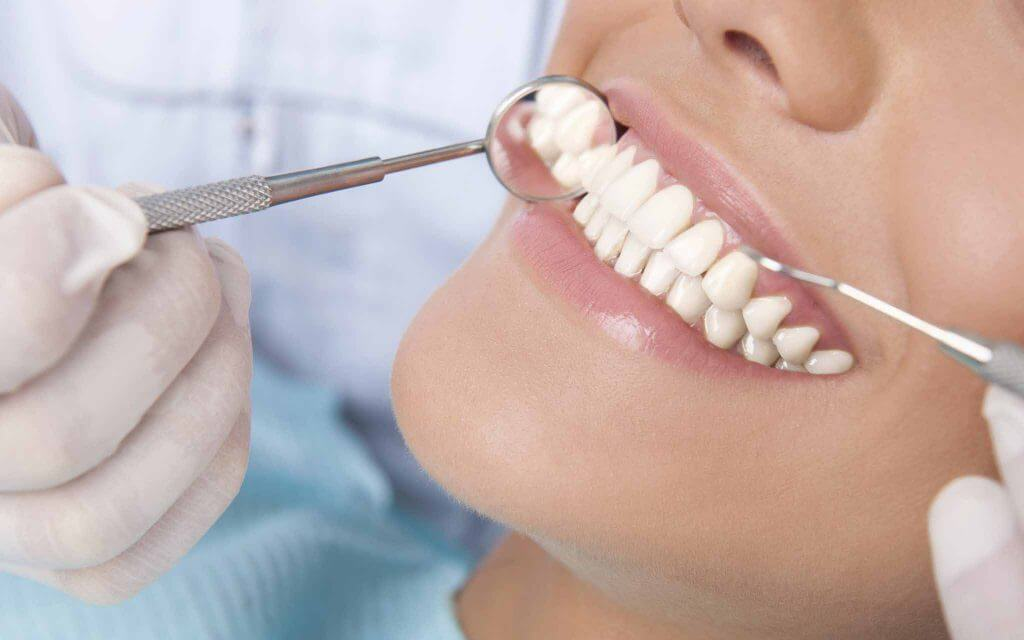 How to Decide When Dental Inlay Will Be the Best Option for You?